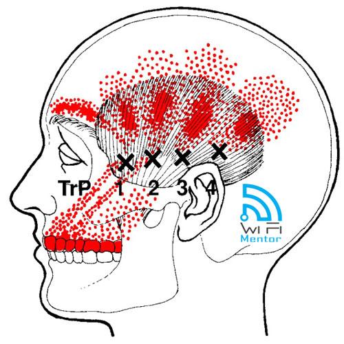 Muitas vezes Curso de Pontos Gatilhos - Tratamento por Digitopressão e Técnica  EL06